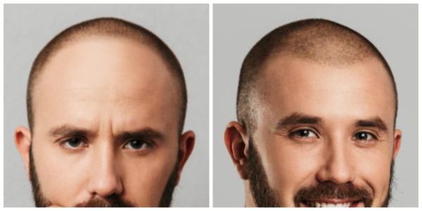 Client C Before and After