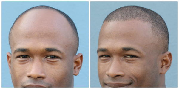 Client D Before and After