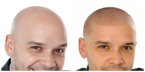 Client E Before and After
