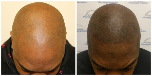 Maurice front Before and After scalp micropigmentation