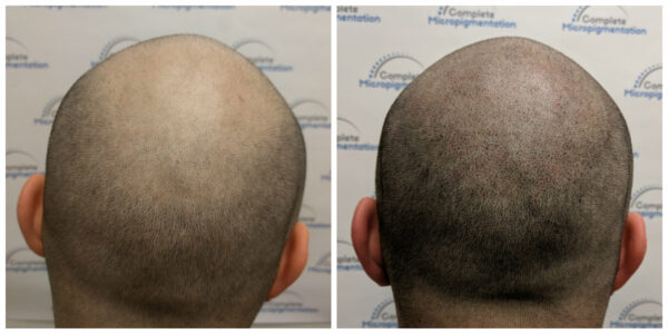 Ig back - before and after scalp micropigmentation by Complete Micropigmentation